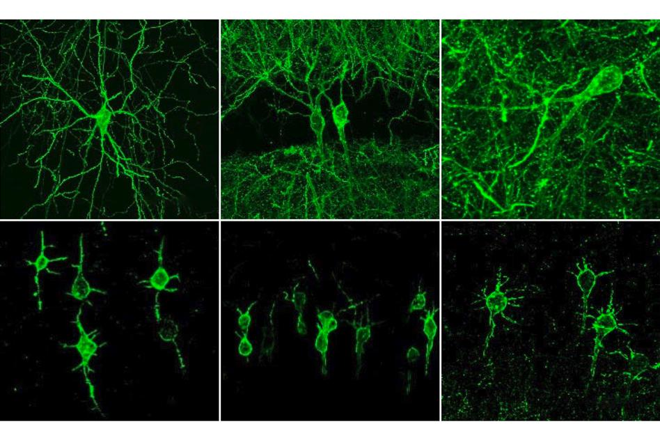 New method visualizes groups of neurons as they compute
